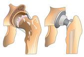 Hip prosthesis — Vetor de Stock
