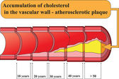 Accumulation of cholesterol in vascular walls. Poster — Stock Vector