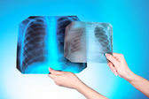 X-Ray Image of two chest on blue background in hand. One man in — Stock Photo