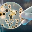 Petri Dish with Bacteria Culture — Stock Photo #6858065