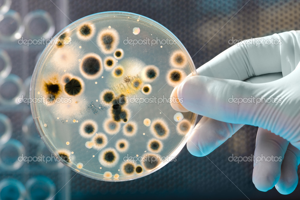 Hand Holds Petri Dish with Bacteria Culture  — Stock Photo #6858065