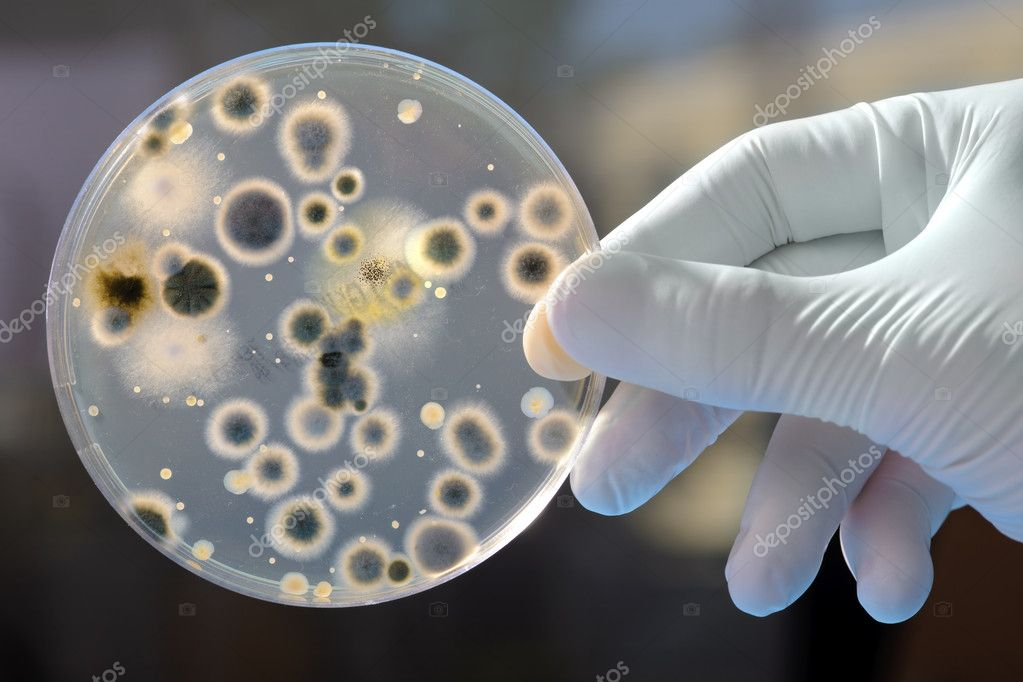 Hand Holds Petri Dish with Bacteria Culture   Stock Photo #6858110