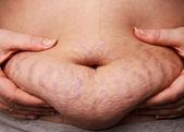 Estrías grasa del vientre — Foto de Stock