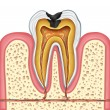 ������, ������: Tooth inner anatomy of a cavity