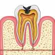 Stock Photo: Tooth inner anatomy of cavity