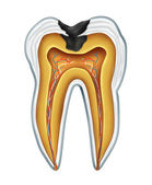 Cavidade do dente — Foto Stock