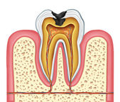 Tooth inner anatomy of a cavity — Stock Photo