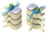 Menschlichen wirbelsäule in details: wirbel, knochenmark, disc und nerven. isoliert auf — Stockfoto