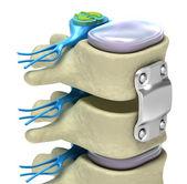 Colonna vertebrale umana nei dettagli — Foto Stock