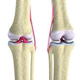 Ginocchio con legamenti e cartilagini isolati su bianco — Foto Stock