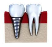 Implanty dentystyczne - w kości szczęki. na białym tle — Zdjęcie stockowe