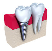Dental implant - implanted in jaw bone. Isolated on white — Stock Photo