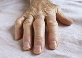 Old wrinkled hand — Stock Photo