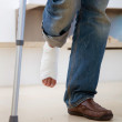 Leg with cast — Stock Photo