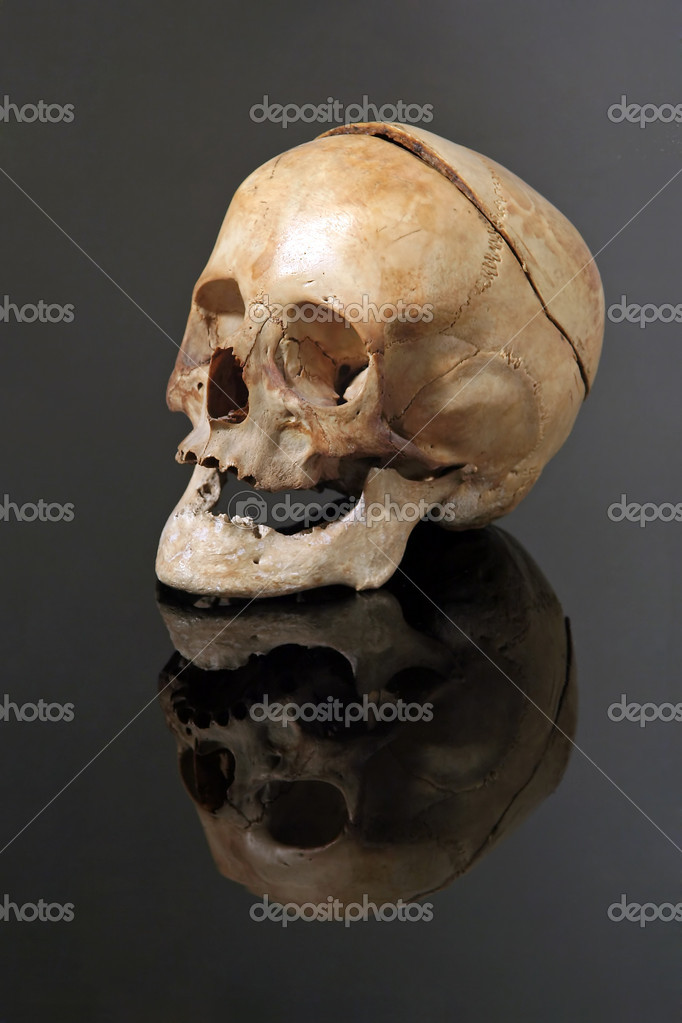 Old woman skull on black reflective background, back of the head is sawed off — Stock Photo #7717974
