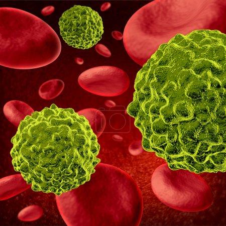 Colon Cancer Treatment PDQPatient Version  National