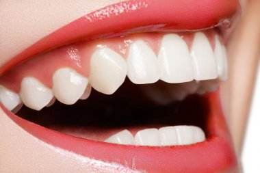 Close-up happy female smile with healthy white teeth, pink gloss lips