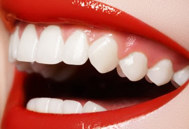 Close-up happy female smile with healthy white teeth, red gloss lips