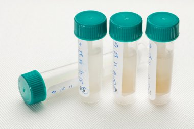 Saliva samples for laboratory test