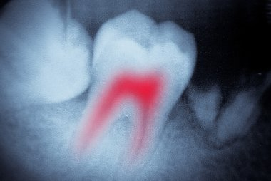 Dental tooth x-ray film