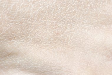 Dry human skin