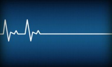 Illustration of EKG trace on blue background stock vector