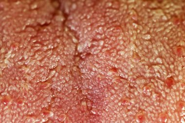 Tongue Surface Close Up