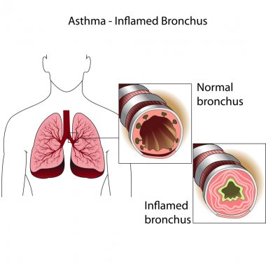 The bronchial tubes of healthy person and a person suffering from bronchia