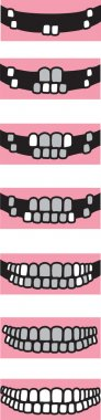 Permanent teeth2