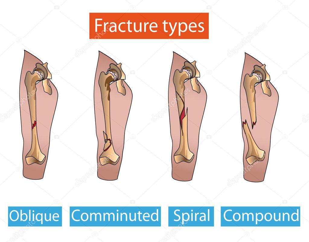 Types Of Bone Fractures Leg Stock Vector Marynamelnyk 7156300