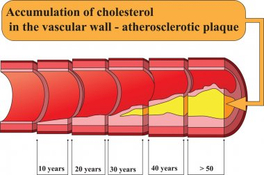 Accumulation of cholesterol in vascular walls. Poster