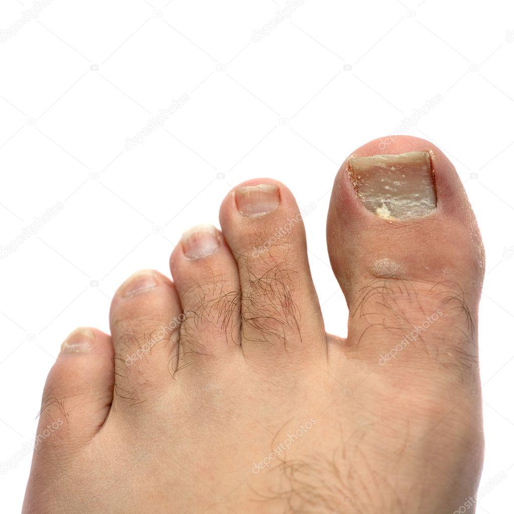 Cracked Fungus Toe Nail — Stock Photo © ArenaCreative #6791484