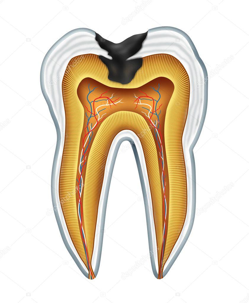 cavidad del diente — Foto de stock © lightsource #7852122