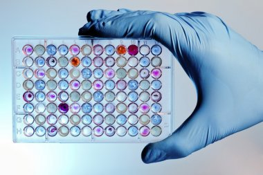 Hand with a microplate