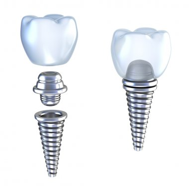 Dental implant lying on surface top side view isolated on white