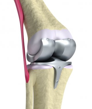 Knee and titanium hinge joint.