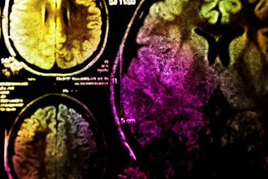 Colorful x-ray scan of brain