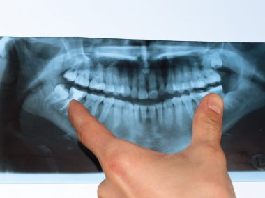 Dental X-Ray panoramic