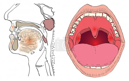 Illustration for Vector illustration of a disease of the adenoids with the affected agencies. - Royalty Free Image