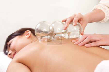 Photo for Acupuncture therapist removing a fire cupping glass from the back of a young woman - Royalty Free Image