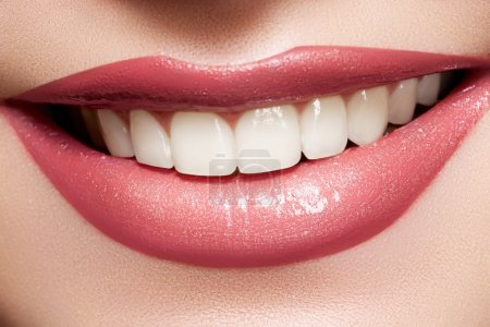 Photo for Close-up happy female smile with healthy white teeth, bright gloss lips make-up. Cosmetology, dental and beauty care. - Royalty Free Image