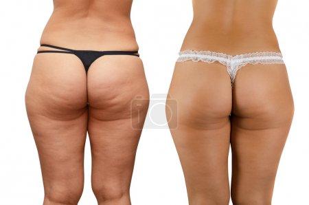 Cellulite buttocks