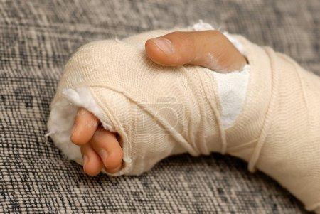 Photo pour Bras osseux cassé dans un plâtre et bandages sur fond gris - image libre de droit