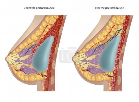 Illustration for Plastic surgery of breast implants. Vector illustration - Royalty Free Image