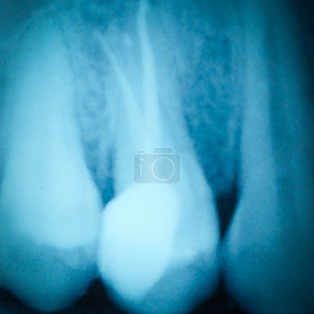 Tooth x-ray film