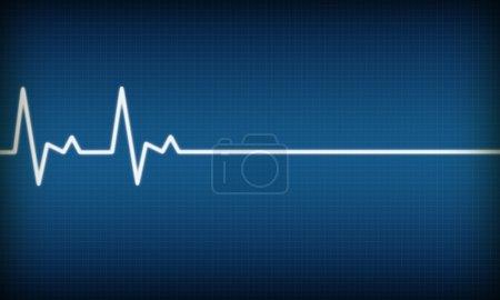 Photo for Illustration of EKG trace on blue background - Royalty Free Image