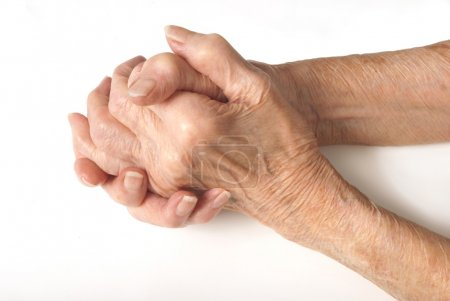 My mother at 90 years old with arthritic hand
