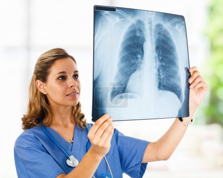 Portrait of a female doctor looking at a chest X-ray