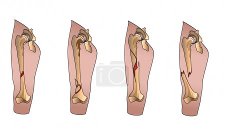 Illustration for Types of bone fractures leg - Royalty Free Image
