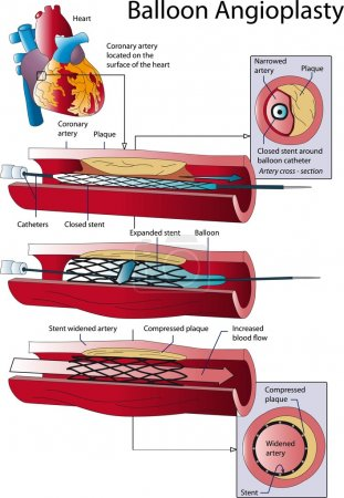 Illustration for Schematic explanation of the process of coronary bypass. - Royalty Free Image